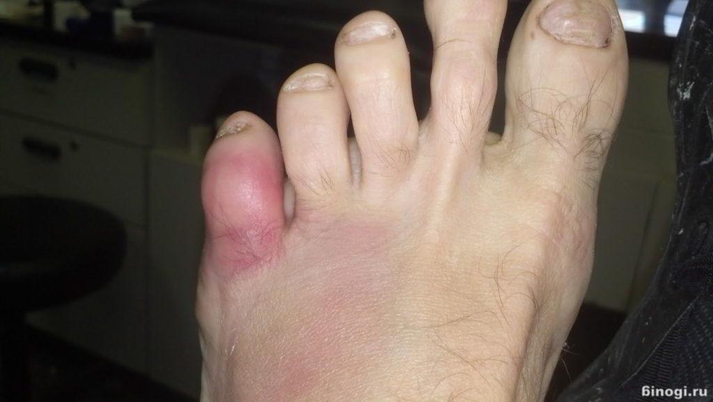 глисты у человека симптомы и лечение видео
