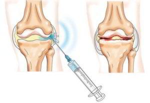 Гиалуроновая кислота для иньекций в сустав при артрозе