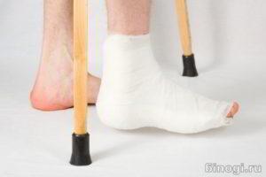 Пациент на костылях с больной стопой