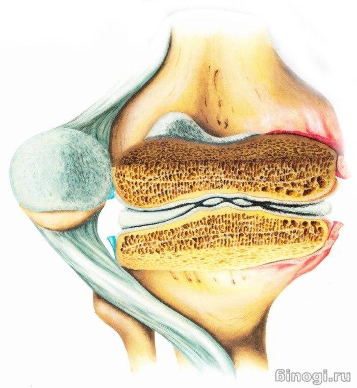 артрит и болотова