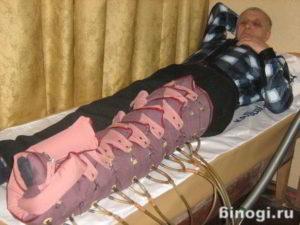 ЛФК при лимфостазе сосудов нижних конечностей