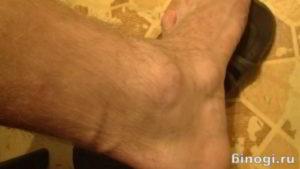 появилась шишка на ноге