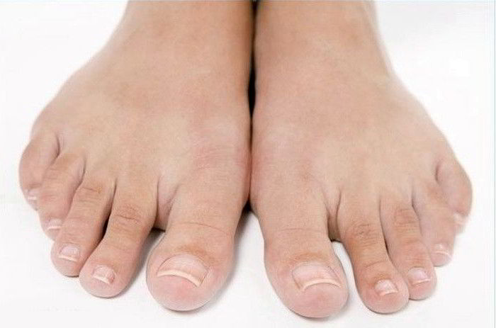 Где лечить лазером грибок ногтей на ногах