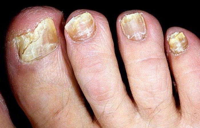 Где можно пролечиться с грибком ногтей на ногах