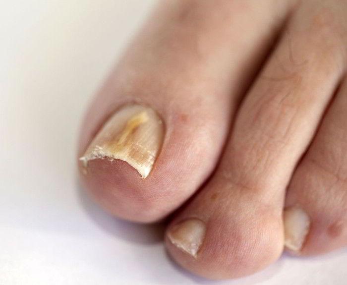 Чем мазать ногти от грибка