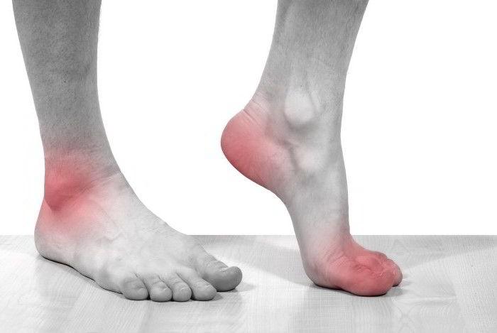 У ребенка болят ступни ног причины