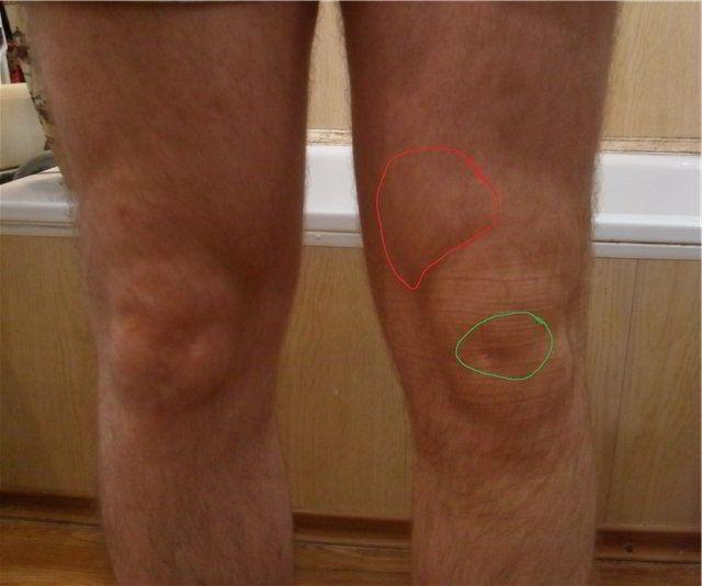 Бурсит в коленном суставе лечение в домашних условиях
