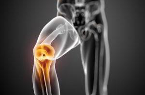 Бурсит коленного сустава симптомы