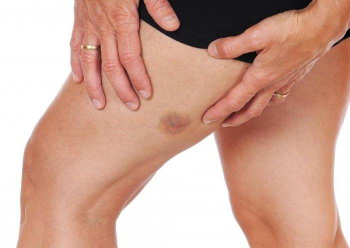 Рожистое восполение коленного сустава эндопротезирование коленного сустава в чебоксарах видео