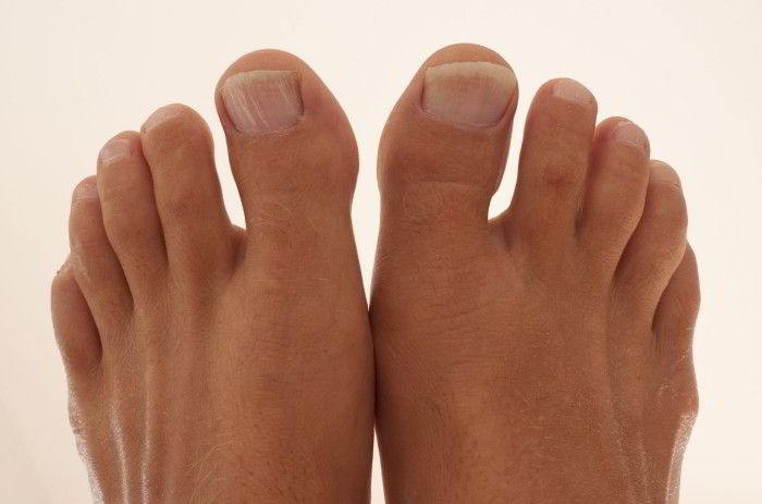 Артрит большого пальца стопы лечение и его виды
