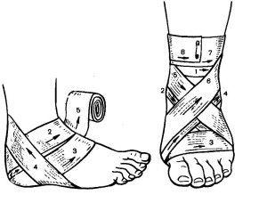 Схема наложения повязки на голеностоп