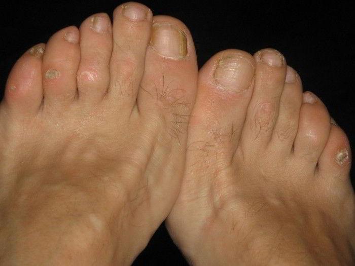 Промокло между ног 4 фотография