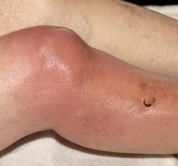 Артрит стопы симптомы лечение фото