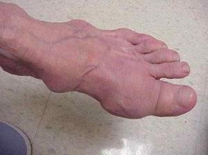 Воспаления в суставах пальцев и ног