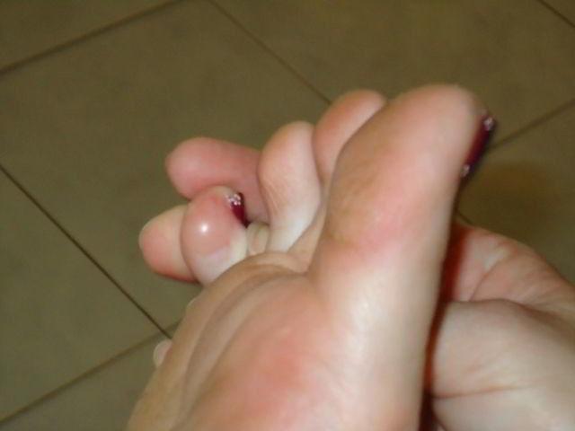 Лазерное лечение грибка ногтя в запорожье
