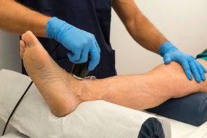 Диагностика ревматоидного артрита ног