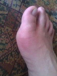 Боль в области большого пальца ноги