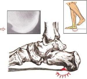 Пяточная шпора причина боли в пятке при ходьбе
