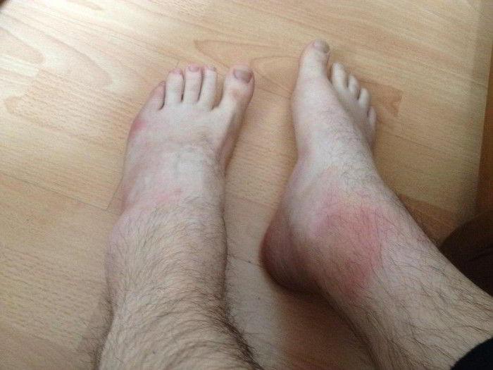 Почему болит шишка на большом пальце ноги