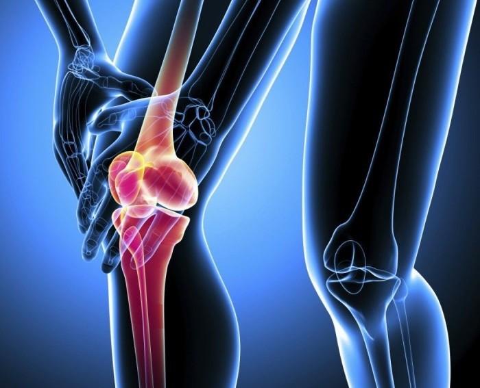 Доа коленного сустава: лечение, причины, профилактика, диета