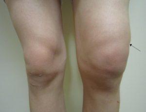 Припухлость колена при остеоартрозе