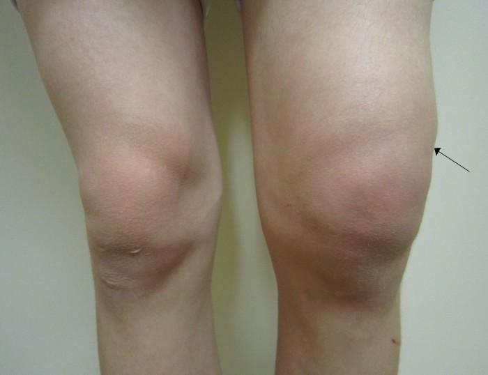 Опухла нога в коленном суставе