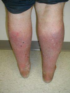 Воспаление вены при варикозе