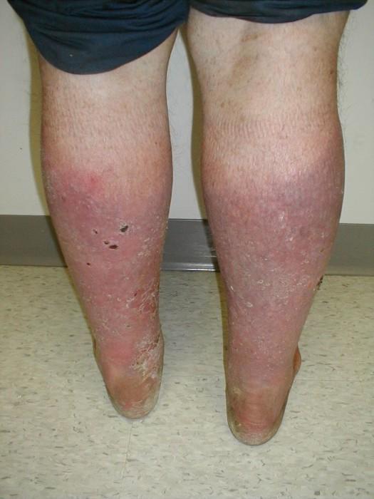 Операция на венах ног через пах