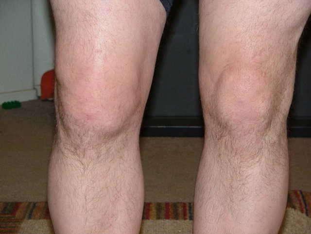 Жидкость коленного сустава алезан.крем для суставов