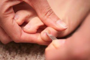 Обработка ногтя с грибком