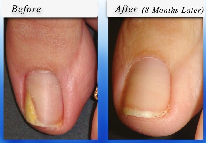 Грибок ногтя лечение лоцерил цена