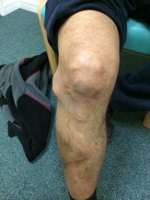 Как лечить кисту Беккера под коленом фото симптомы лечение