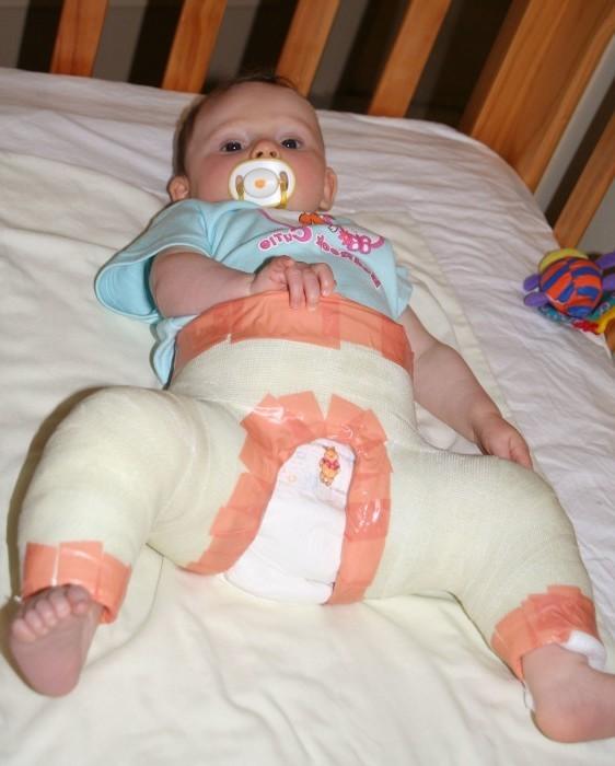 незрелость одного тазобедренного сустава у новорожденных