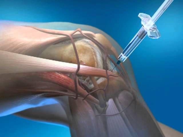 Пункция коленного сустава показать картинки изменение сустава на ногах