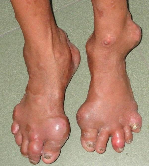 болезнь суставов подагра лечение народными средствами