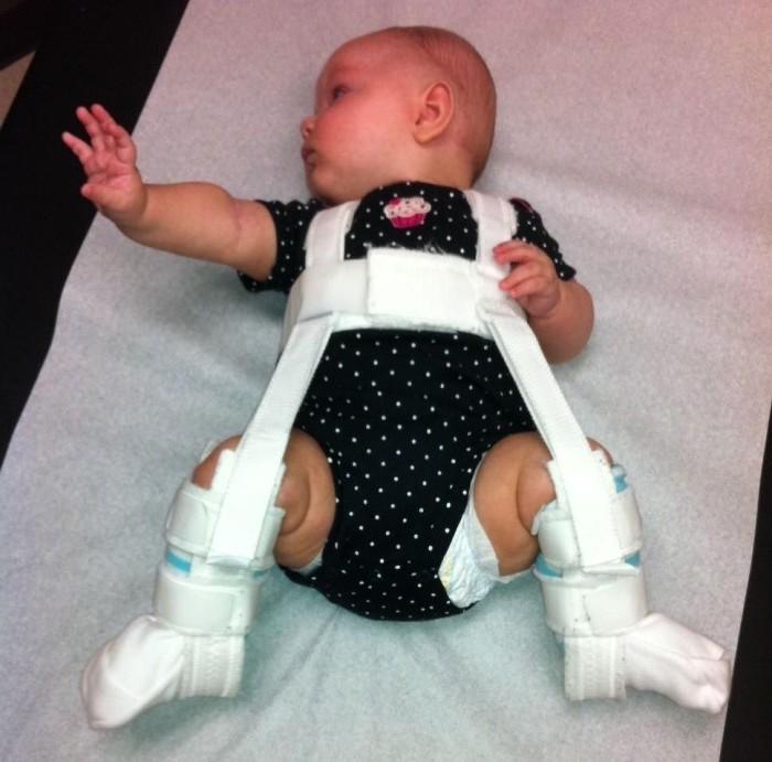 незрелость тазобедренных суставов у новорожденных фото