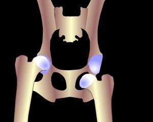 Гимнастика с подвывихом плечевого сустава