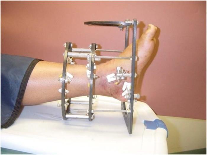 деформация голеностопного сустава лечение аппаратом илизарова