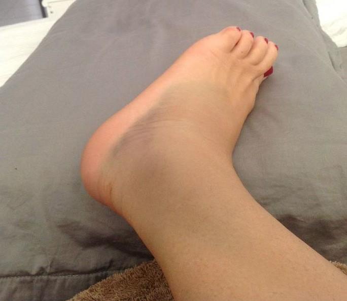 Варикозные ноги после операции