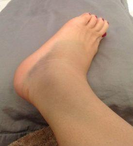 отёк ноги в области щиколотки