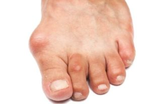 Артроз большого пальца ноги