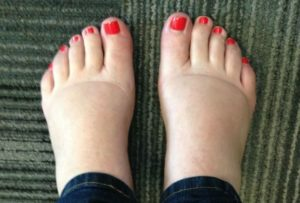 Опухла нога в районе стопы