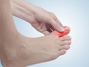 Как снять боль при подагре