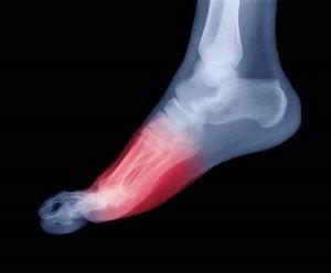 Обозначение зоны воспалительного процесса на рентгеновском снимке стопы ноги при фасците