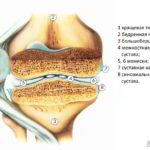Схематичное изображение разреза коленного сустава с артритом первой стадии