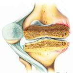 Схематичное изображение разреза коленного сустава с артритом второй стадии