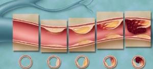 Этапы сужения прохода сосуда при атеросклерозе