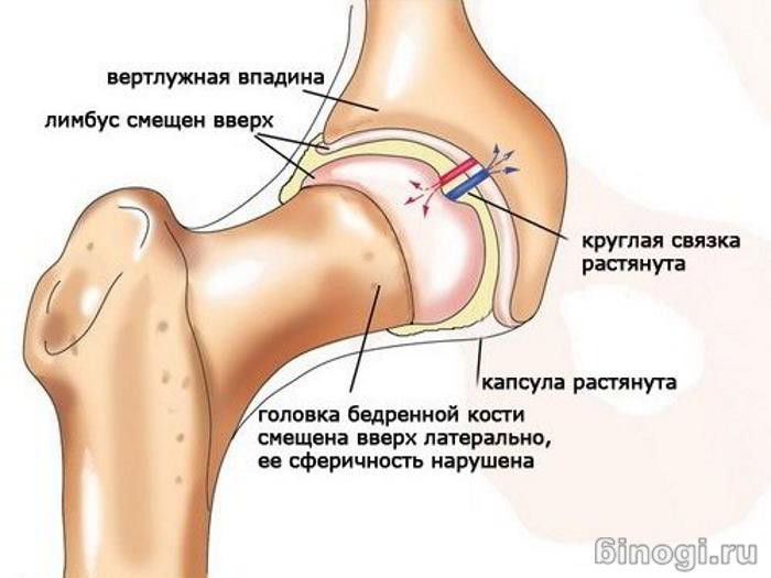 Коксит тазобедренного сустава у взрослых симптомы и лечение