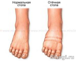 Нормальная и отёчная стопа при лимфостазе