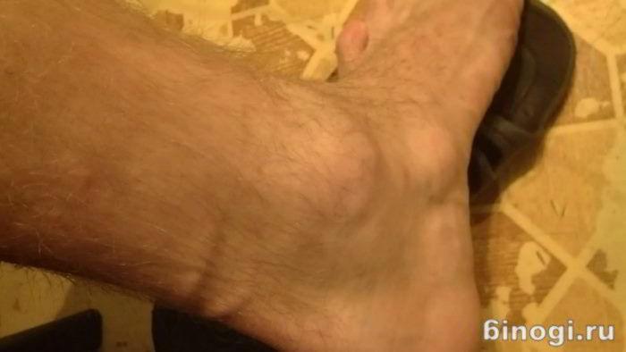 Прыщ на ноге с гноем